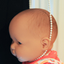 baby with cord around the head